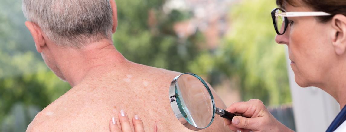 Slider Huidtherapie Oncologie Netwerk Rijssen 1